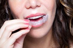 Woman Wearing Dental Mouth Guard