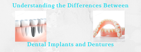 differences between dental implants and dentures